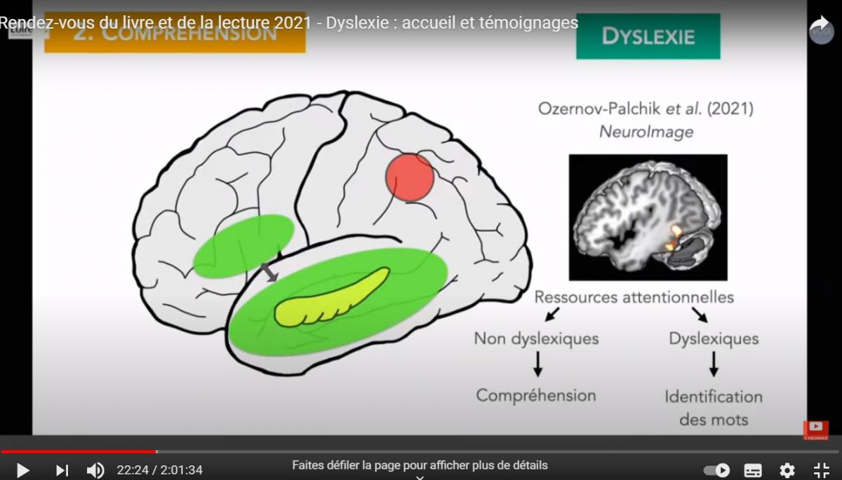 les zones du cerveaux